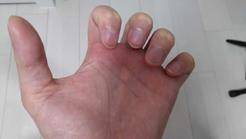 指先が根元にくっつくまで第二関節のみを折り曲げていき、その状態をキープしたまま指の隙間を広げる